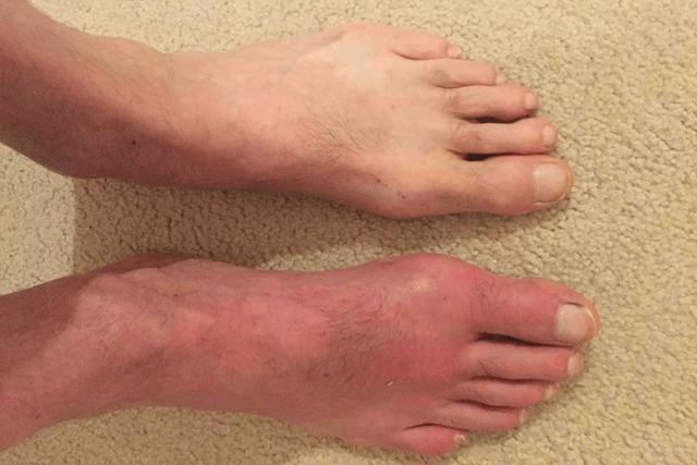 痛風で足の指の付け根が腫れている